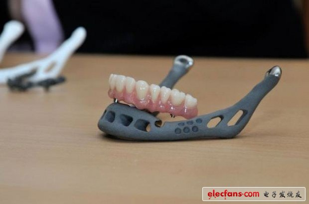 Application of 3D printing technology on teeth