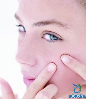 Check out those unreliable acne methods