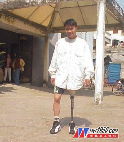 使用假肢的患者
