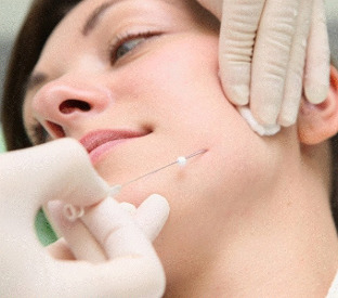 face lift treatment by Magik PDO Thread