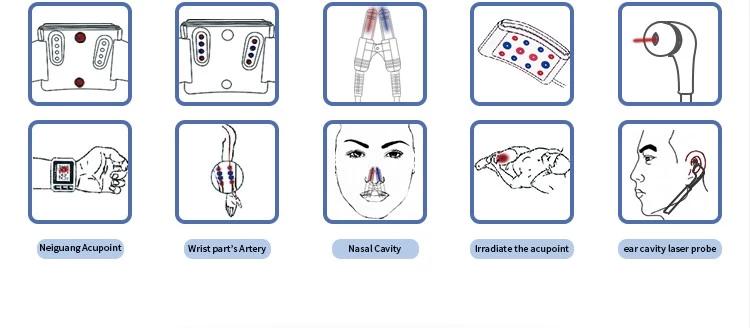 Lasertherapie.png