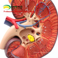 SELL 12430 Enlarge Medical Model Human Body Organe Adrenal Gland and Kidney