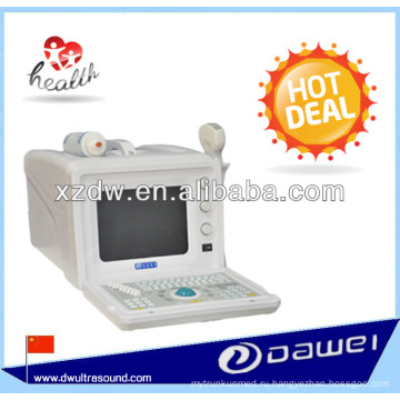 Электронное медицинское оборудование и экономической ультразвуковой сканер