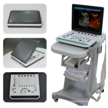 Laptop Ultrasound System With Trolley B