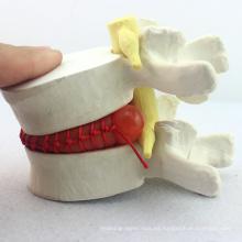 VERTEBRA08 (12392) Modelo de demostración de ciencia médica de hernia de disco lumbar, 1.5 veces, modelo patológico para comunicación de pacientes