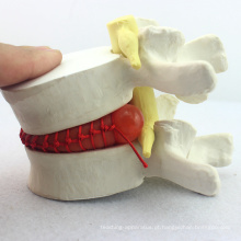 VERTEBRA08 (12392) Medical Science Demo modelo de hérnia de disco lombar, 1,5 vezes, modelo patológico para comunicação do paciente