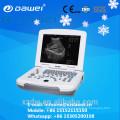 prix de la machine à ultrasons et machine à ultrasons pour la grossesse