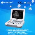 цена машины ультразвука и ультразвуковой аппарат для беременности