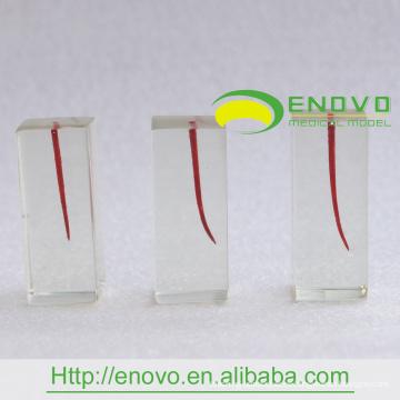 EN-N8 Curvatura de grados diferentes Dentro de los canales de raíz Bloque transparente S4