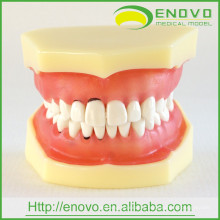 EN-L3 Removable Dental Soft Peridontal Teeth Model for Training