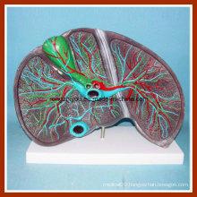 Enlarged Size Liver Anatomical Model