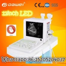 papier d'imprimante d'ultrason et scanner à ultrasons numérique bon marché