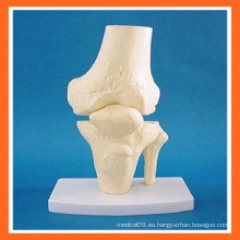 Simulación Anatómica de Rodilla Modelo de Esqueleto de la Articulación de la Rodilla para la Enseñanza Médica