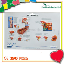 Prostate 3D Medical Wall Chart