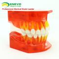DENTAL16(12596) Dentural развития зуба модель Возраст от 3 до 6 лет