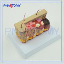 PNT-0756 agrandada modelo de piel humana patológica