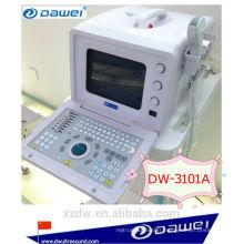 scanner portatif d'ultrason de vessie et échographie abdominale