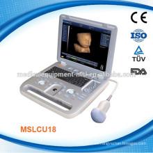 ¡El ordenador portátil 3D y escáner de ultrasonido 4D MSLCU18-M, usted tendrá gusto de él !!