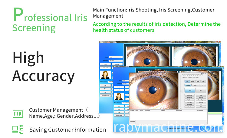 Iris Iriscoope Iridology Camera