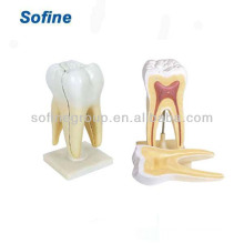 Dental Teaching/Study Model,Human Teeth Model,Dental Model