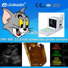 Escáner de ultrasonido 96ele precio bajo y dw-360 portátil máquina de ultrasonido 12.1 pulgadas LED pantalla de alta definición