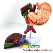 VISCERA01 (12538) Estômago da Anatomia Humana Associado ao Modelo do Abdômen Superior em 6 Partes