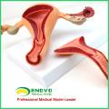 ANATOMY04 (12442) структура анатомическая модель матки , Анатомия модели > репродуктивной системы