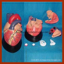 Tamaño grande de la educación médica del corazón humano modelo anatómico (7 PCS)