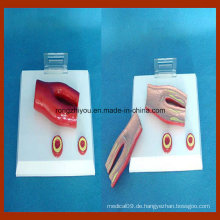 Desktyp Arteriosklerose Modell, mit Querschnitt der Arterie, 2 Teil