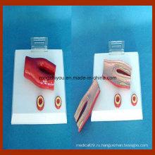 Модель артериосклероза Desktype с поперечным сечением артерии, 2 части