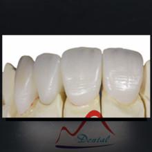 Dental Empress All Ceramic Crown and Bridge