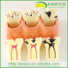 EN-M1 4Times Enlarge Caries Disassembling Model