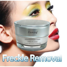 New Arrival Fancy Acne and Freckle Cream at Wholesale Price
