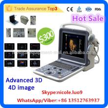 MSLCU28I vaskuläre Doppler Ultraschall Maschine & 3d 4d Farbe Doppler Ultraschall