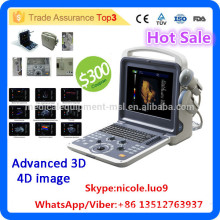 2016 MSLCU28I Medical kidney Ultrasound New type price Portable 4d color ultrasound