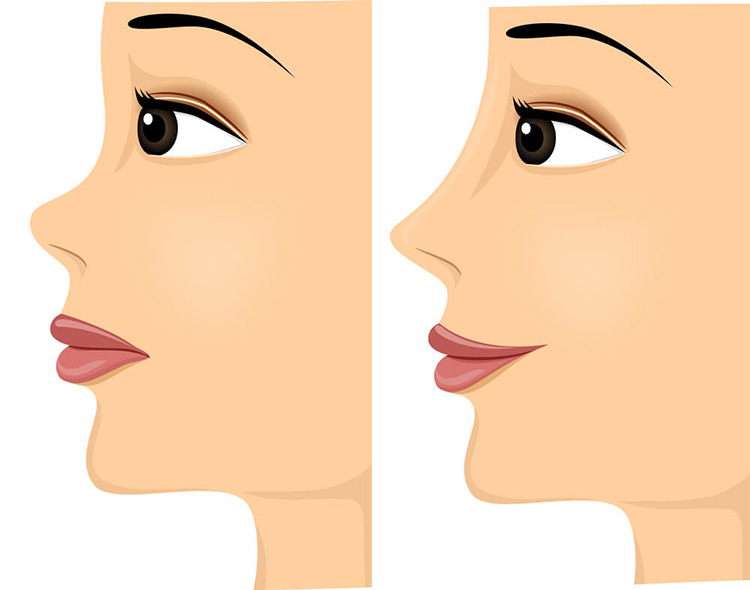 Nose Thread Lift