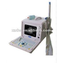 VENTA CALIENTE máquina de ultrasonido portátil para la India (DW3101A)