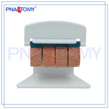 ПНТ-0735 человека атеросклероз сосудов тромбом модель модель модель кровеносного сосуда