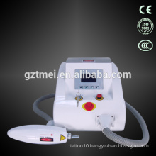 Medical laser tattoo removal machine price long pulse nd yag laser