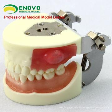 Modèle de formation de zone de chirurgie buccale modèle de pratique d'enlèvement de pus d'incision 12605