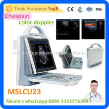2016 Escáner de ultrasonido doppler de color más barato MSLCU23i viene con sonda convexa y sonda lineal