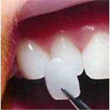 Interproximal Tight Cosmetic Dental Veneers For Teeth Health With Ips Ceramic Material