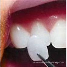 Natural Teeth Cosmetic Dental Veneers Of Dental Laboratory For Periodontal Health
