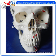 ИСО медицинская модель черепа с оттенками, указывающими мышцы
