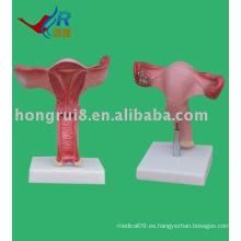 El útero agrandar Modelo, modelo del útero