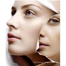 (L-Carnosine) --Prevent Skin Aging and Skin Whitening L-Carnosine