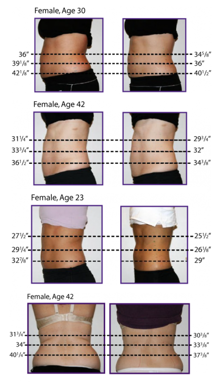 Fast Weight Loss Lipo Laser