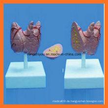 Medizinische pädagogische natürliche Größe Thyroidea Modell