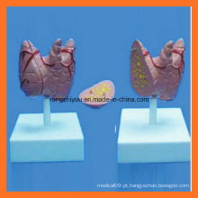 Modelo de Thyroidea de tamanho natural médico-educacional