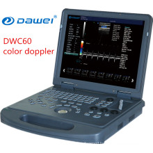 Medical equipment of Color Doppler Ultrasound Machine Price